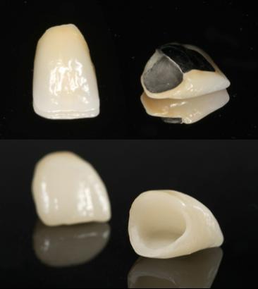 Resultado de imagen de corona de porcelana y acrilico